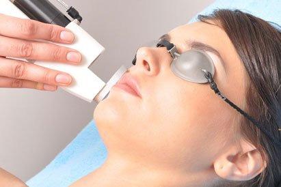 Процедура лазерного удаления патологических капилляров