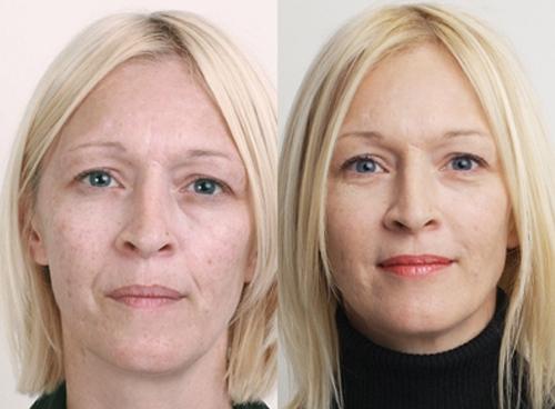 До и после процедуры омолаживающего пилинга