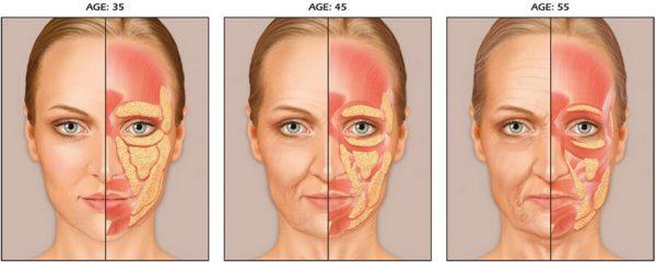 Постепенное старение кожи