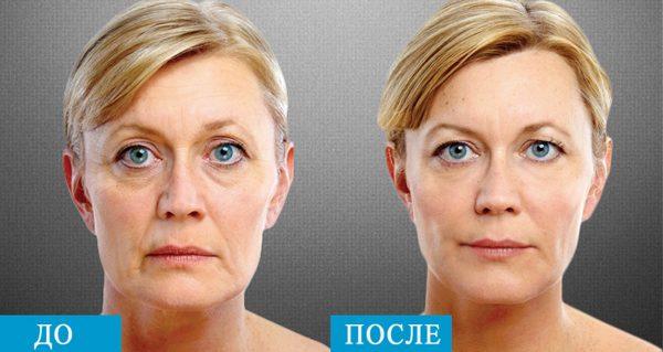 До и после эндоскопического SMAS-лифтинга