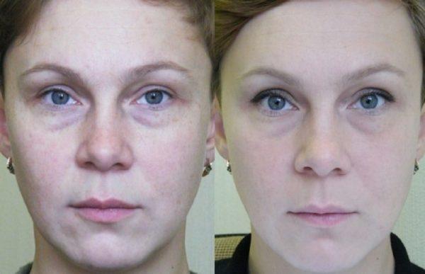 Фото женщины до и после фототермолиза