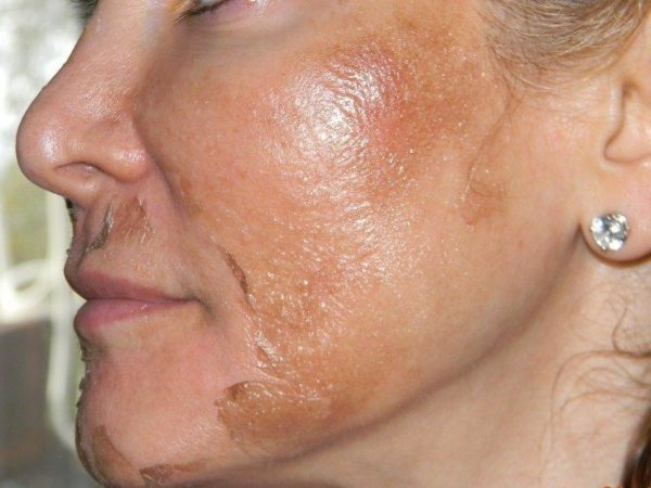 Интенсивное шелушение кожи после пилинга