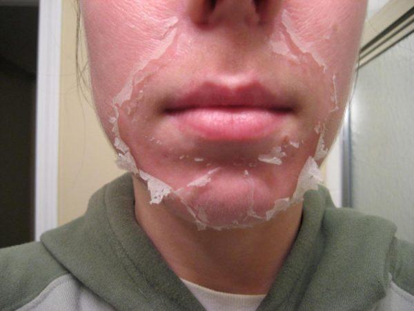 Лицо после пилинга