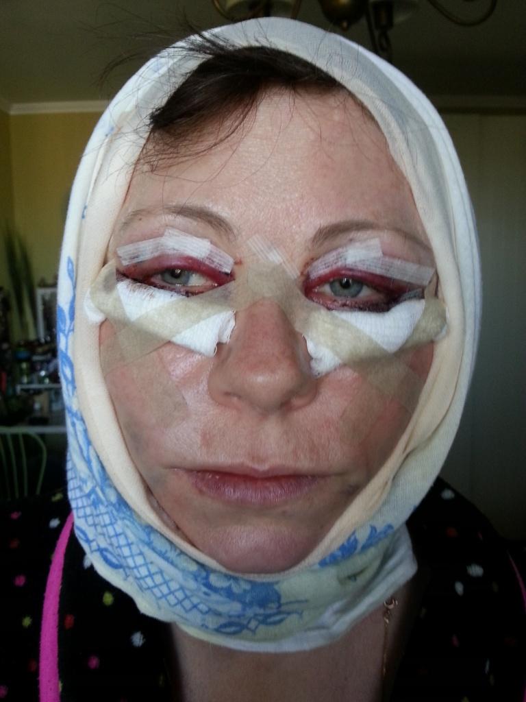 Платизмопластика: фото до и после операции, возможные осложнения и противопоказания