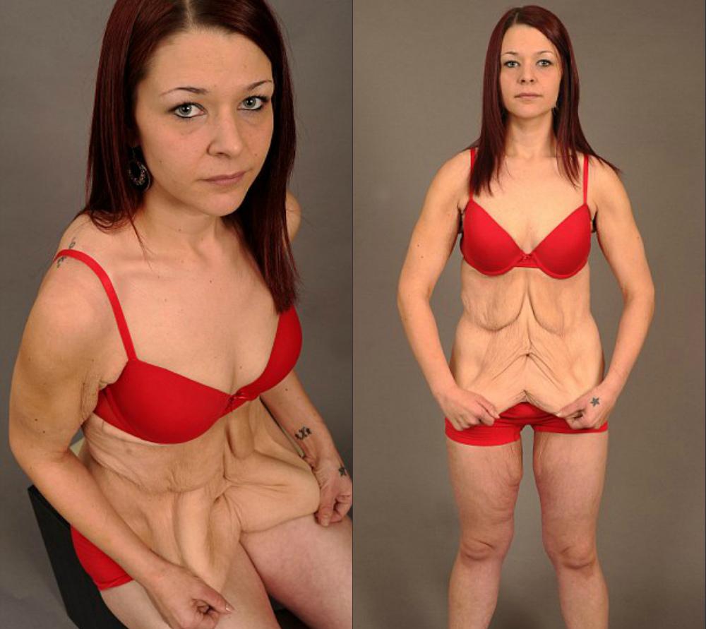 Как Похудеть После Паксила. Невролог назначил Паксил. Помог, но за 5 месяцев я поправилась на 10 кг. В чем причина набора веса на АД (Паксиле)?