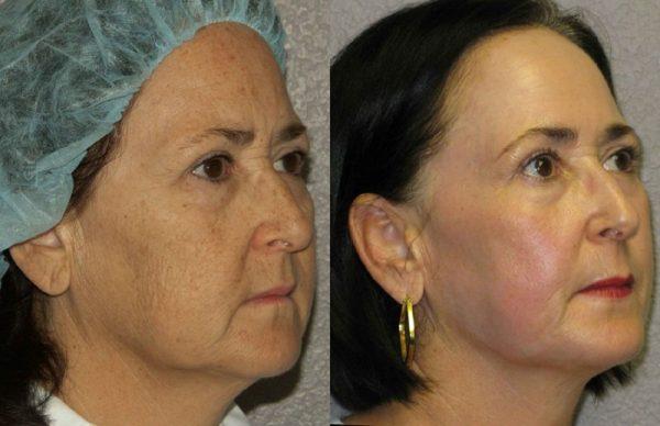 Результат после полного фракционного омоложения кожи