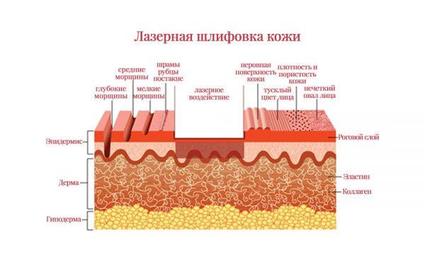 Схема лазерной шлифовки кожи