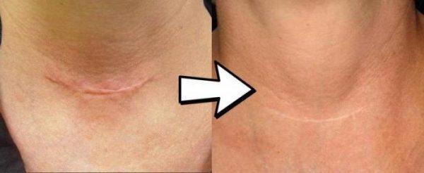 Шрамы после пластической операции