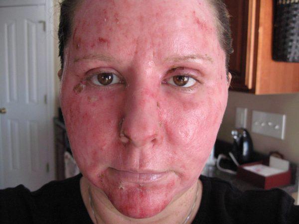 Состояние кожи после фракционного абляционного омоложения
