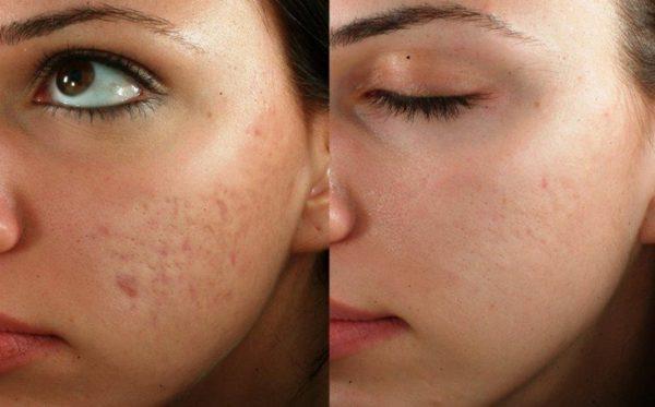 До и после курса масок с мумиё при постакне