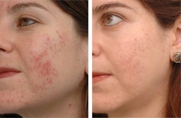 До и после курса масок с мумиё при проблемной коже