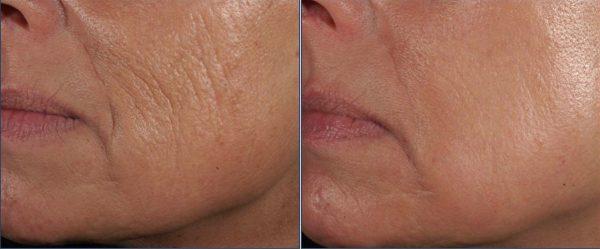 До и после курса масок с мумиё при зрелой коже