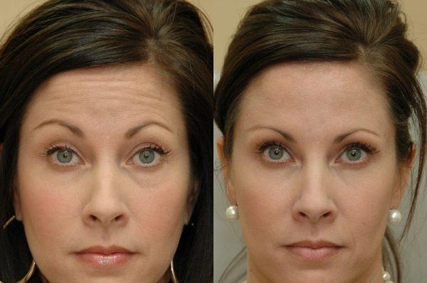 До и после сделанной в салоне маски