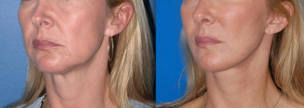 Фото нижней части лица до и после лифтинга жидкими нитями