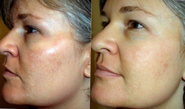 Лицо до и после маски
