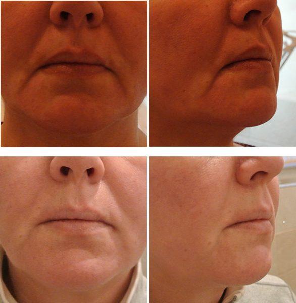 Фото нижней части лица до и после филлеров