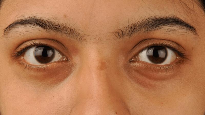 Ассортимент средств и процедур, помогающих избавиться от тёмных кругов под глазами