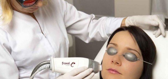 Омоложение лица с помощью фракционного лазера