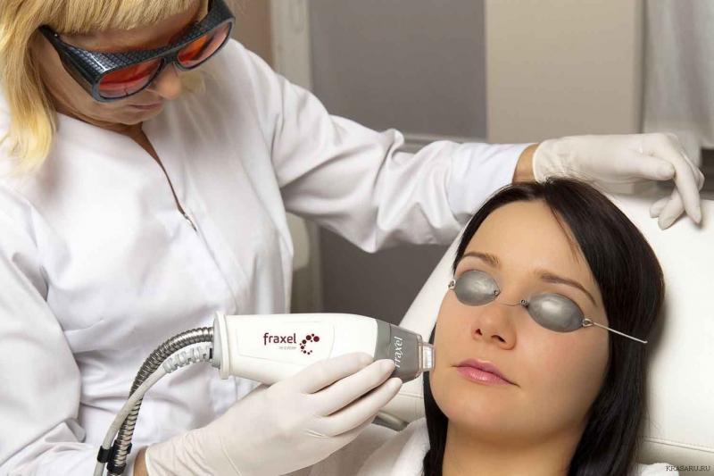 Фракционное лазерное омоложение лица — эффективное решение для зрелой и проблемной кожи