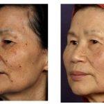 Омоложение стареющей кожи