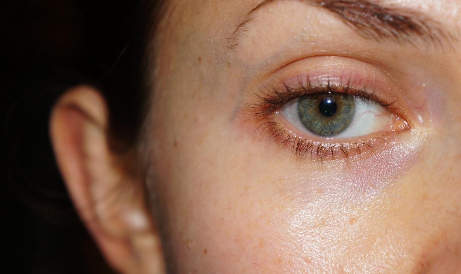 Чтобы небольшие мешки под глазами после биоревитализации не стали эффектом неожиданности для пациентки, косметолог обязан предупредить ее о подобных возможных последствиях манипуляции.