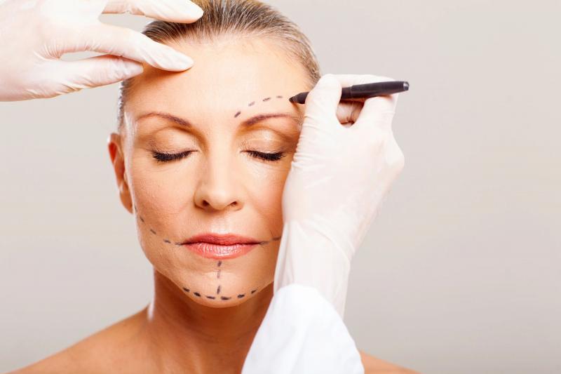 Что нужно знать о процедуре векторного лифтинга лица