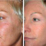 Разглаживание морщин, повышение тургора кожи