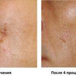 Удаление шрама на лице
