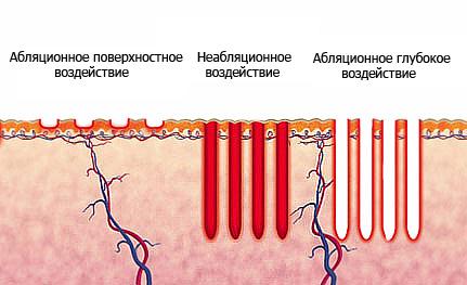 Виды фракционного лазерного воздействия на кожу