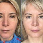 Лимфодренаж: до и после