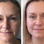 Лимфодренажный массаж и возрастные изменения