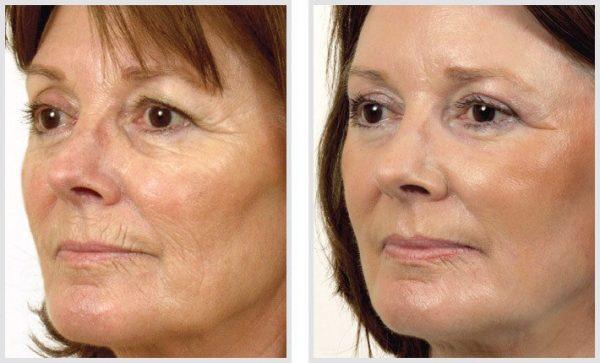 До и после лазерного омоложения лица