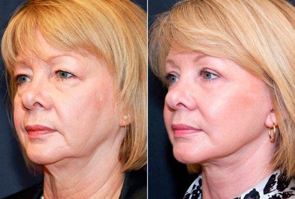 До и после контурной пластики лица