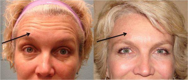 До и после уколов ботокса