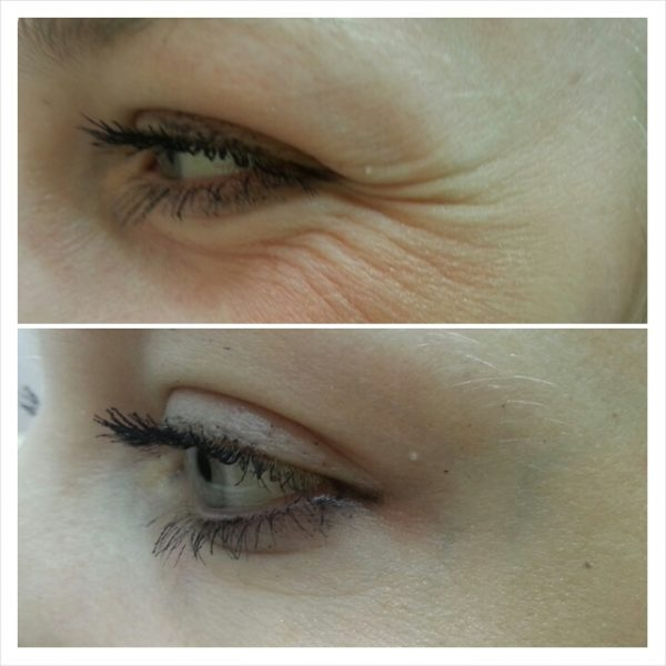 До и после инъекций Ботокса вокруг глаз