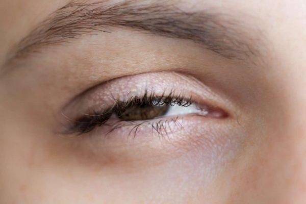Закрывшийся глаз после инъекций Ботокса