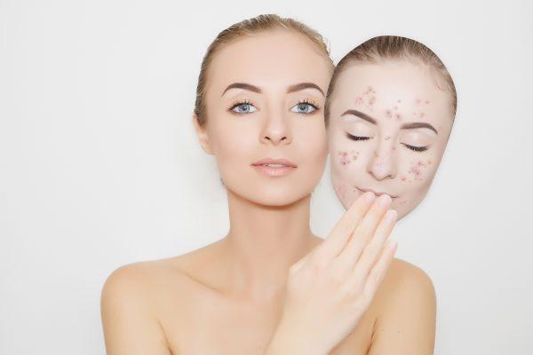 Девушка держит в руке маску с изображением лица в прыщах