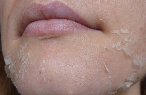 Шелушение кожи на подбородке и щеках