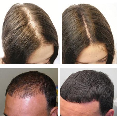 До и после курса масок с димексидом