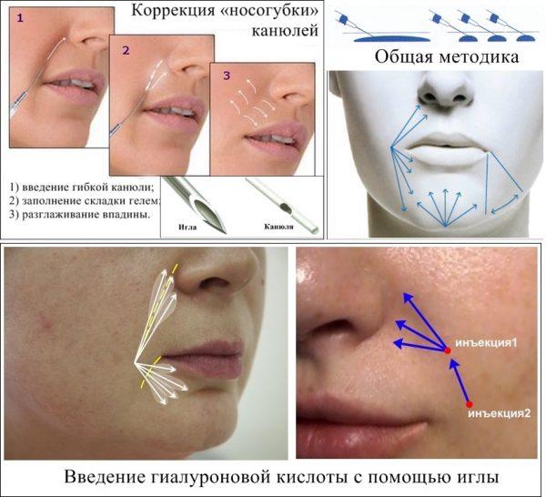 Техники и способы введения гиалуроновой кислоты в носогубные складки
