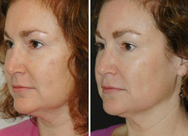 До и после курса масок с желатином