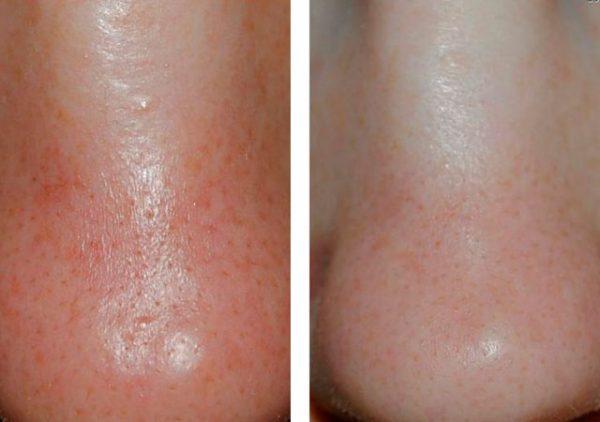 Результат применения желатиновых масок на проблемной коже