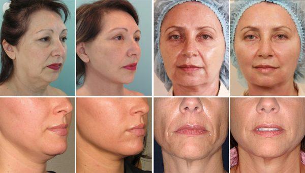 Пациенты до и после нитевого лифтинга