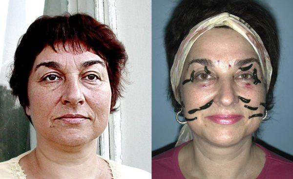 Омоложение лица с помощью пиявок: до и после