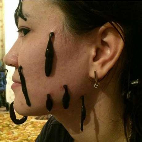 Пиявки на лице