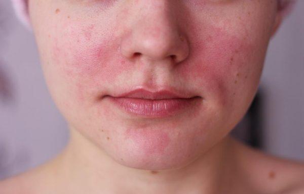 Проявление аллергии на лице