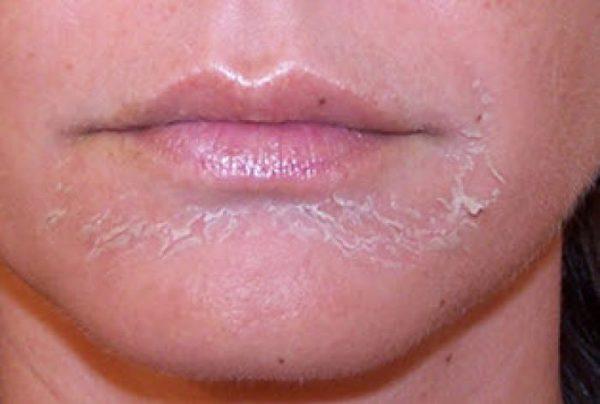 Интенсивное шелушение кожи