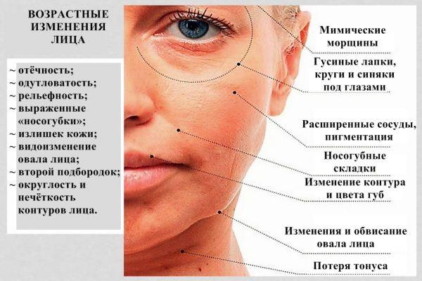Симптомы возрастных изменений кожи