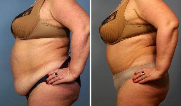 До и после панникулэктомии