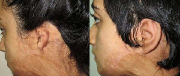 Реконструкция ушной раковины